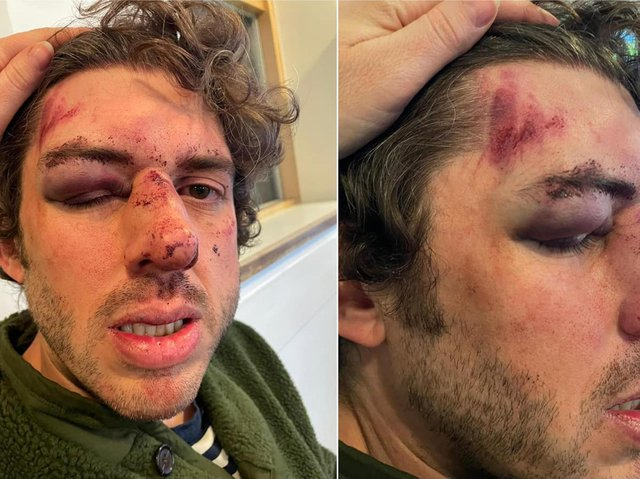Matt Wright was injured during an attack in Halifax town centre