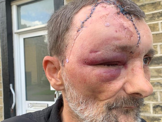 Sean Ryan was attacked on Saturday afternoon.